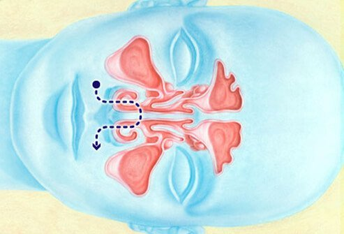 Illustration of the body's nasal irrigation.