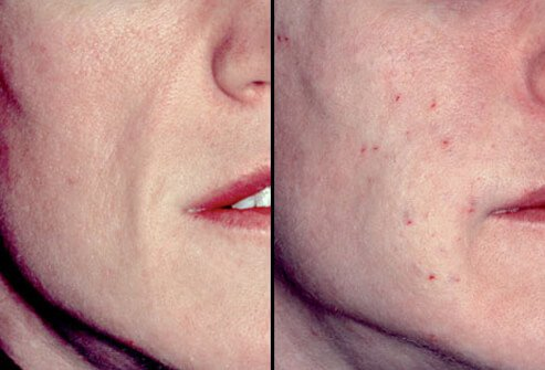 Before and after photos of a cosmetic filler treatment using human tissue.