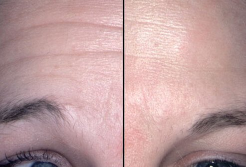 Before and after photos of Botox treatment to a woman's forehead