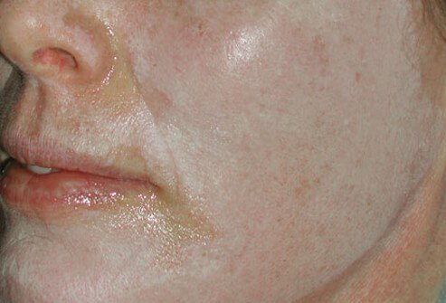 A woman's face after a chemical peel.