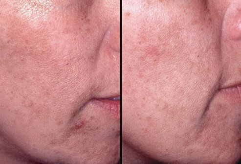 Before and after photos of a chemical peel treatment.