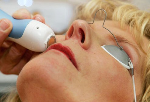 A woman undergoes laser skin treatment.