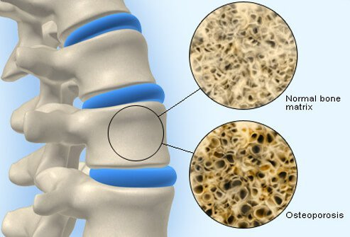 Illustration shows normal bone density and weakened bone affected by osteoporosis.