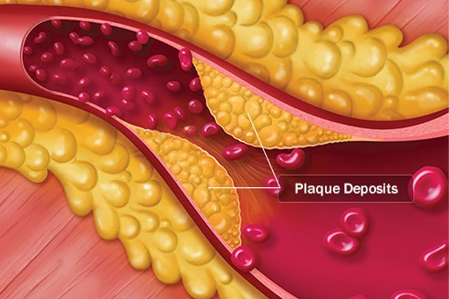 Plaque buildup in your arteries is a major cause of heart disease.
