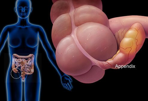 An infected appendix needs to be removed by a surgeon.