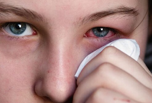 A woman holds a tissue to her irritated eye.