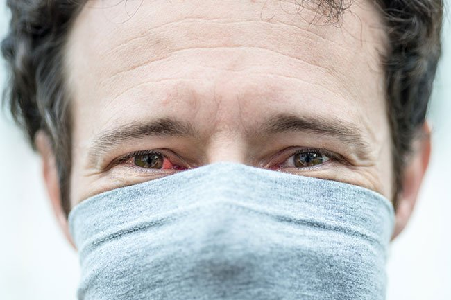 In rare cases, pink eye develops in people who have COVID-19, the novel coronavirus.