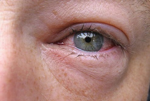 A close-up view of heavy inflammation in the eye.