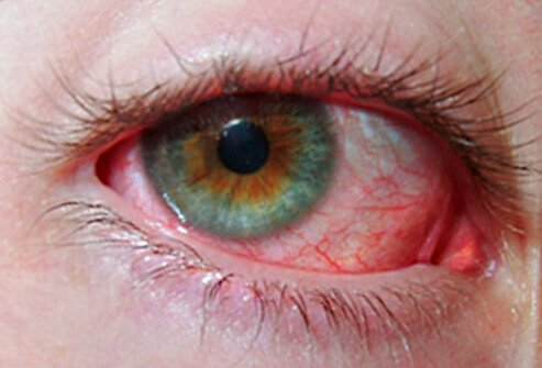 PINK EYE You might want to have that looked at. (Avril Lavigne) Eye redness