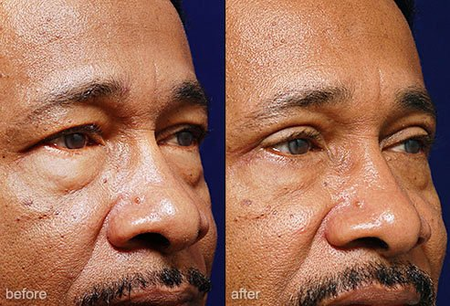 Eyelid surgery can create a more youthful appearance.