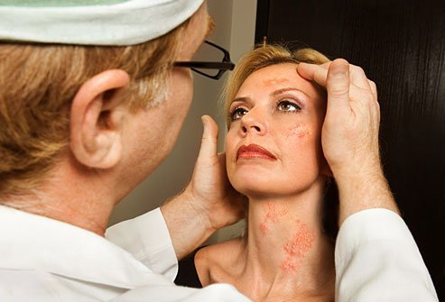 See your doc if the rash is close to your eyes or is widespread over your body.