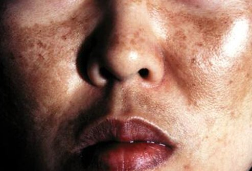 Melasma (pregnancy mask) is characterized by tan or brown patches on the cheeks, nose, forehead, and chin.