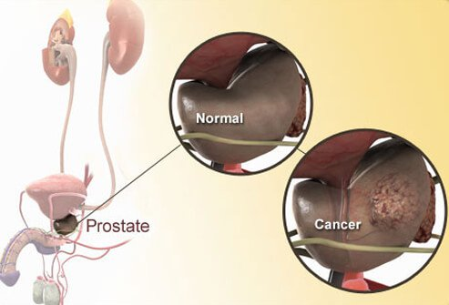 Photo of normal and cancerous prostate diagram.
