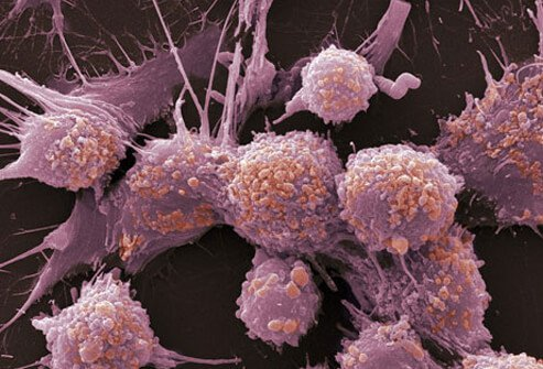Photo of prostate cancer cells.