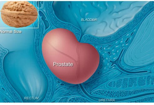 Photo of an enlarged prostate.