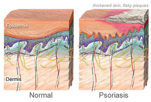 An illustration of normal skin and skin with psoriasis.