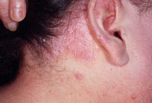 psoriasis of the scalp picture image on medicinenet, Skeleton