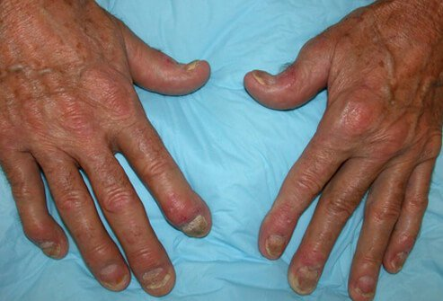 In a majority of patients, psoriatic arthritis causes swelling and inflammation of the fingers and pitting and ridges in the fingernails.