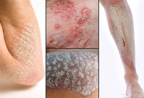 - Arthritis psoriasis is a combination of psoriasis and join inflammation 1