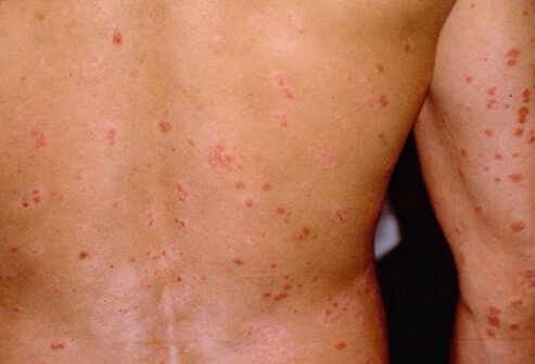 Psoriasis that causes small, salmon-pink colored drops on the skin is guttate psoriasis, which affects about 10% of people with psoriasis.