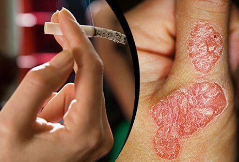 Smoking greatly increases the risk of psoriasis and makes the condition much worse.