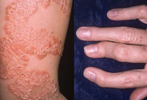 Psoriatic arthritis is a chronic disease characterized by inflammation of the skin (psoriasis) and joints (arthritis).