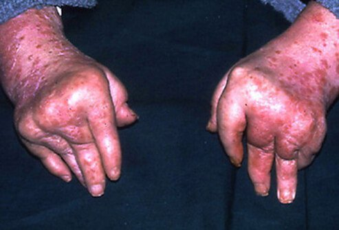 Arthritis mutilans is a severe, deforming, and destructive form of psoriatic arthritis that primarily affects the small joints in the fingers and toes closest to the nail.