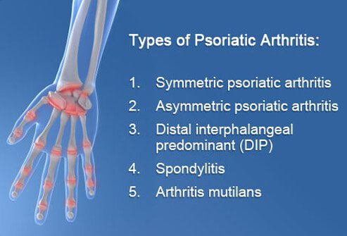 There are five types of psoriatic arthritis, and it is important to know which type you have so that it may be treated properly.