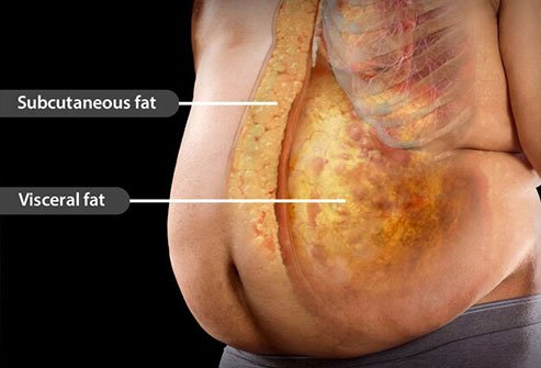 Visceral fat around organs increases the risk of high blood pressure, diabetes, and heart disease.