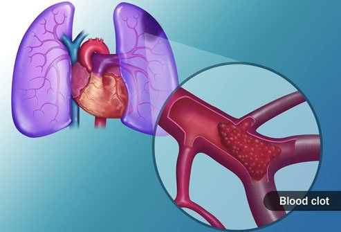 A pulmonary embolism may lead to life-threatening lung problems.