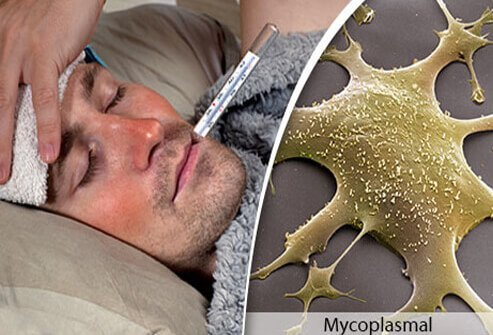 A colorized microscope view of mycoplasmal pneumonia and a man with pneumonia in bed with a fever.