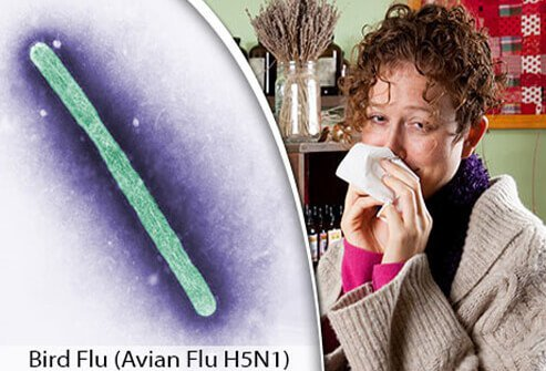 A colorized microscope view of influenza A(H5N1) and a sick woman blowing her nose.