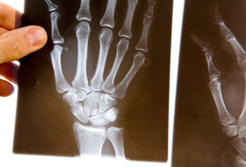 A doctor examines an X-ray of a patient with rheumatoid arthritis.