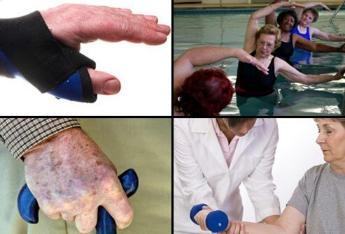 A balance of rest and exercise is important in treating rheumatoid arthritis.