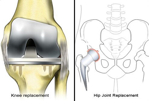 With severe rheumatoid arthritis, surgery may be needed to reduce pain and improve joint function.
