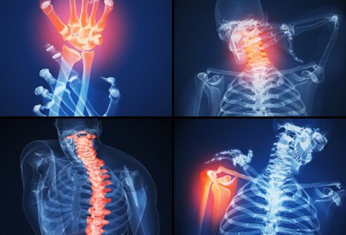 When a person with RA has symptoms including joint inflammation and pain, this is called a flare.