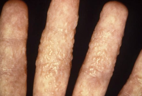 Picture of Ringworm of the Hand