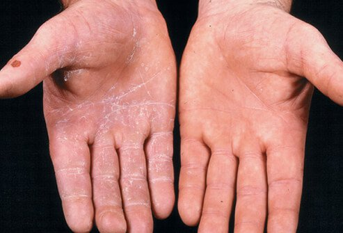 Tinea manuum finds its way onto human hands through either soil, animals, or human contact.