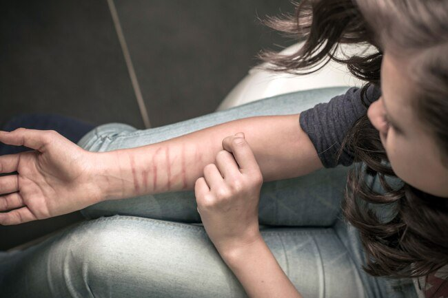 Self-harm is a coping mechanism for traumatic memories and mental pain.