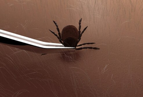 Use fine-tipped tweezers to remove ticks.