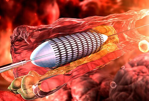 Angioplasty may help prevent heart attacks by opening clogged coronary arteries.