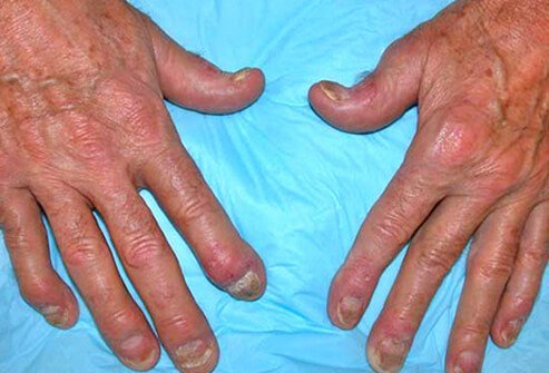 A photo of psoriatic arthritis on the hands.