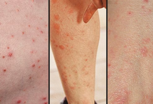 What Is Scabies? Rash, Treatment, Symptoms, Pictures