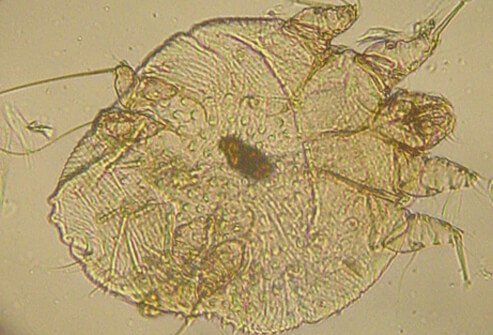 A magnification of a scabies mite (Sarcoptes scabiei).