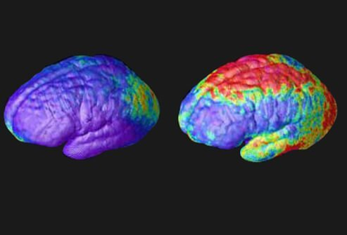 Rate of gray matter loss: Composite MRI scan data showing areas of gray matter loss over 5 years, comparing 12 normal teens (left) and 12 teens with childhood-onset schizophrenia. Red and yellow denotes areas of greater loss. Front of brain is at left.