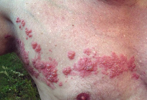 A herpes zoster rash appears on a man's chest and torso.