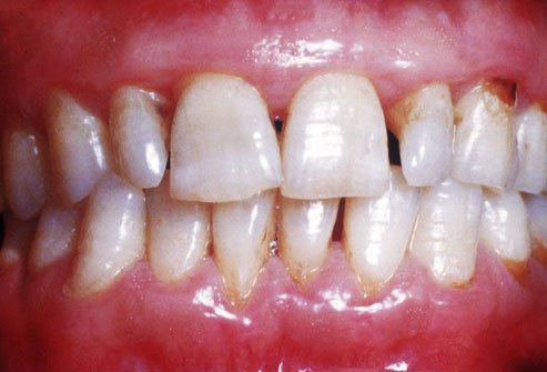 Bleeding gums are one potential sign of low vitamin C.