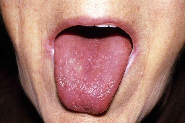 This condition is also called glossitis, for the smooth, glossy look your tongue has when it is swollen.