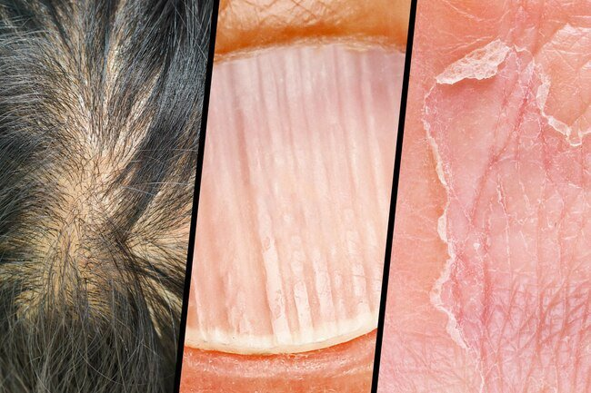 Insufficient protein may affect your hair, skin, and nails.