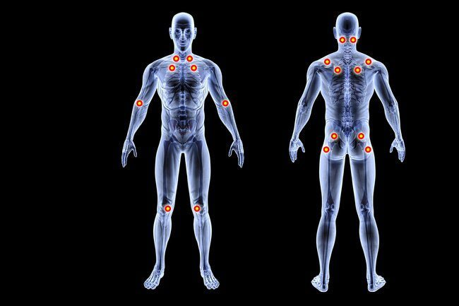 Fibromyalgia is a condition that makes your muscles ache and feel stiff.